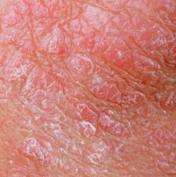 中医角度看「湿疹」-『湿疹剖析篇』(上)