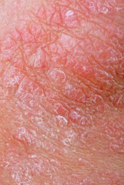 中醫角度看「濕疹」-『濕疹剖析篇』(上)